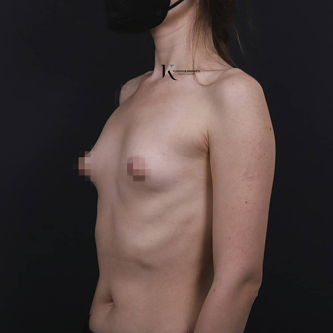 нулевой размер груди