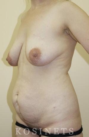 восстановление после родов фото