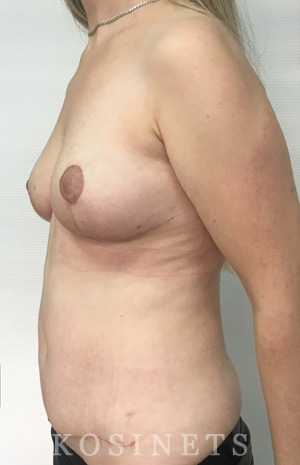 восстановление после родов клиника