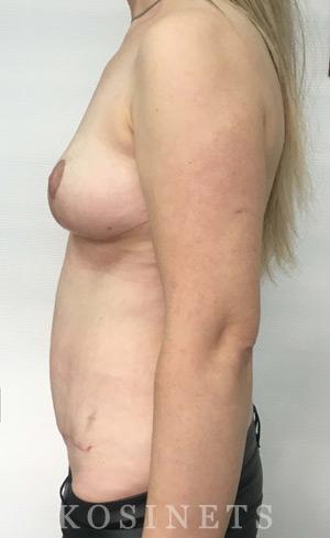 восстановление после родов до и после