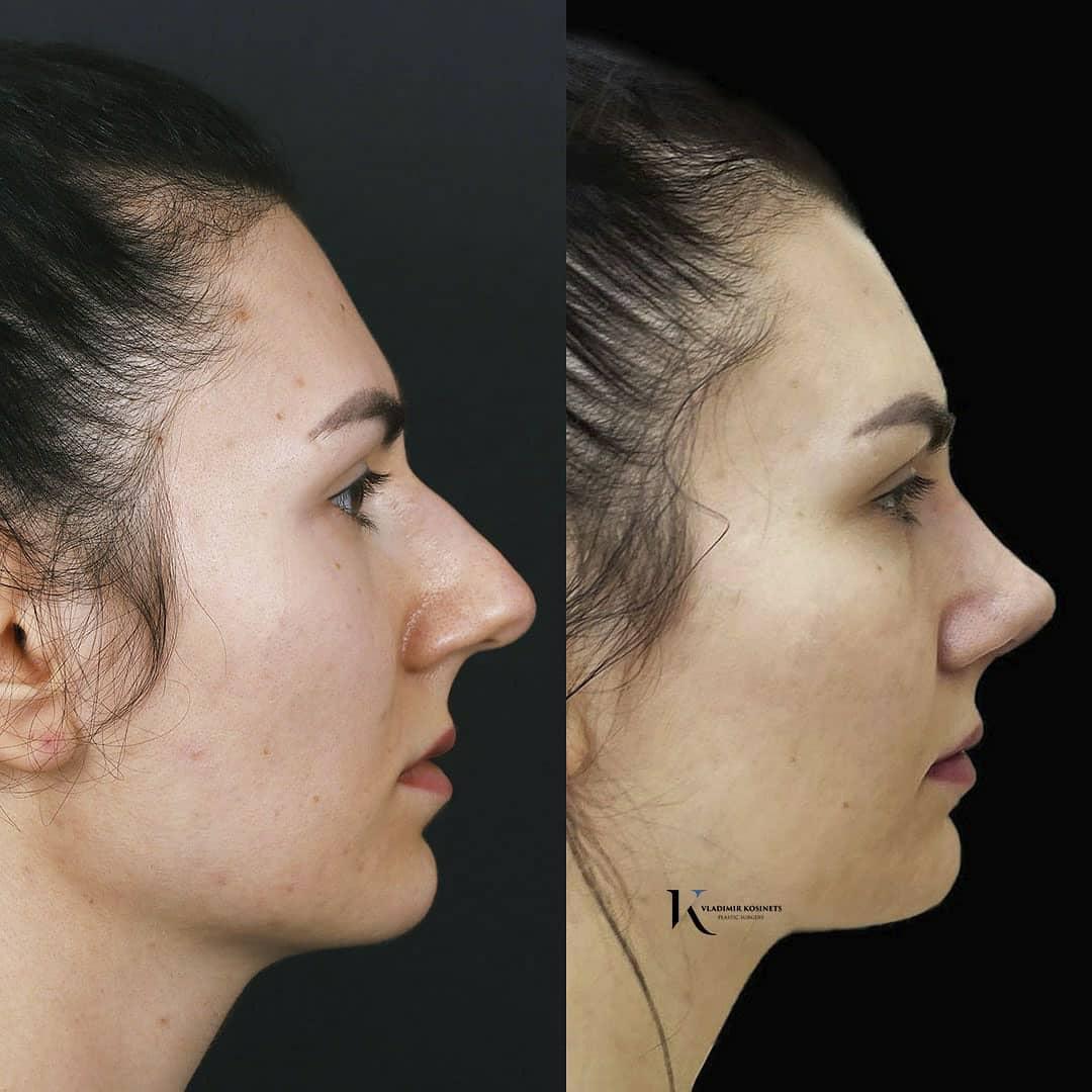 пьезо ринопластика нос