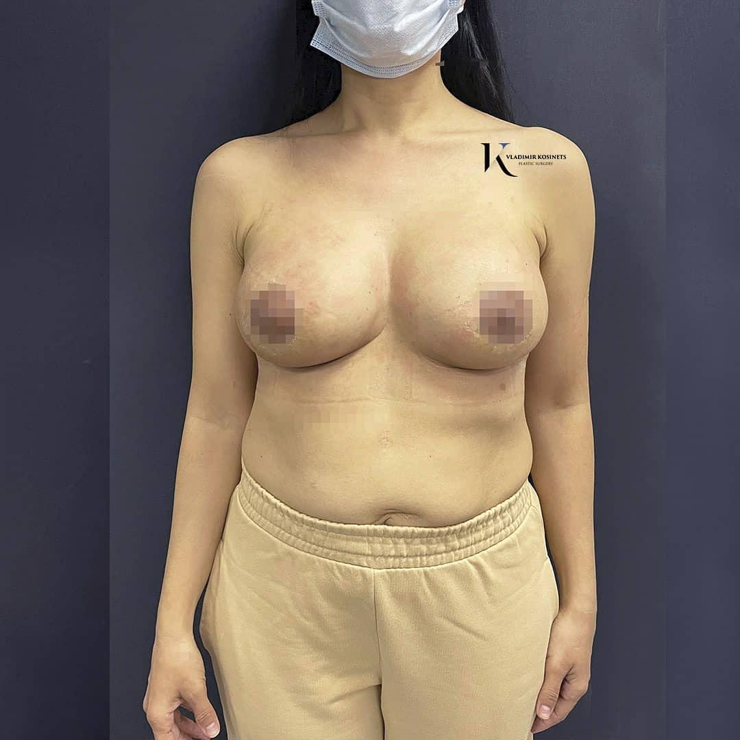 подтяжка груди по ареоле