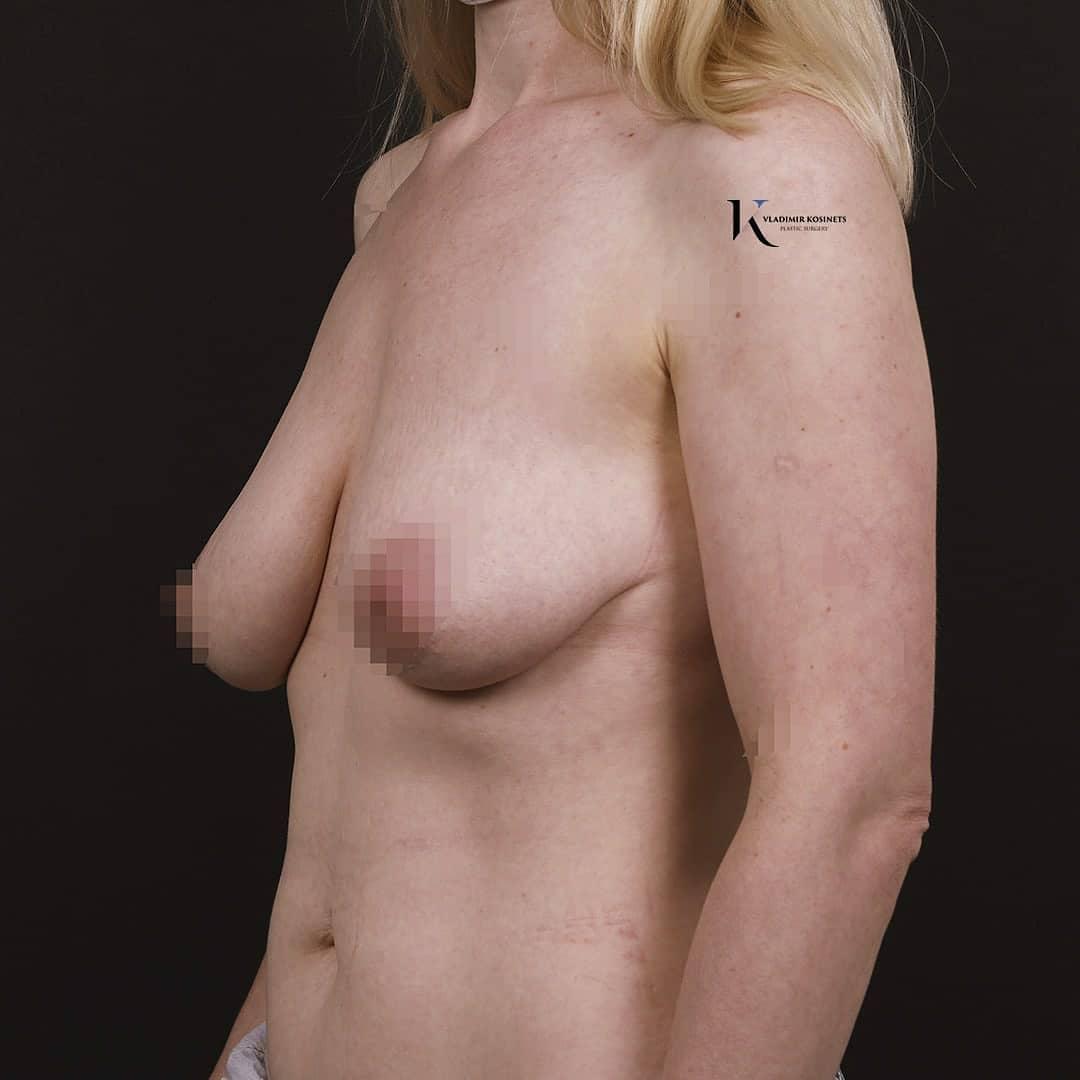 операция грудь