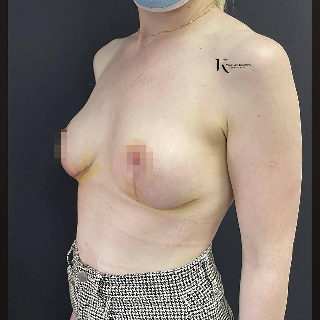уменьшающая маммопластика