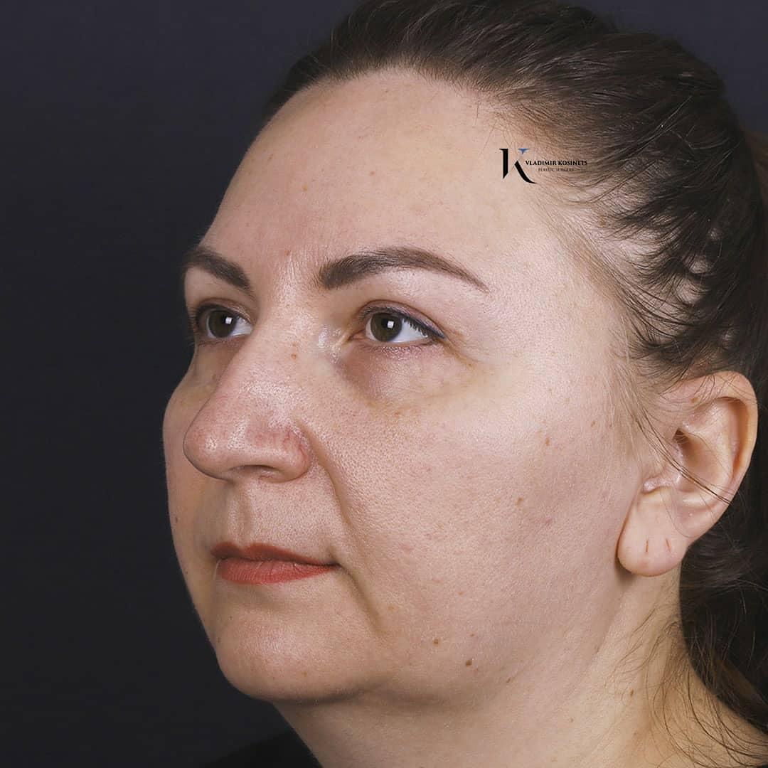 горбинка носа
