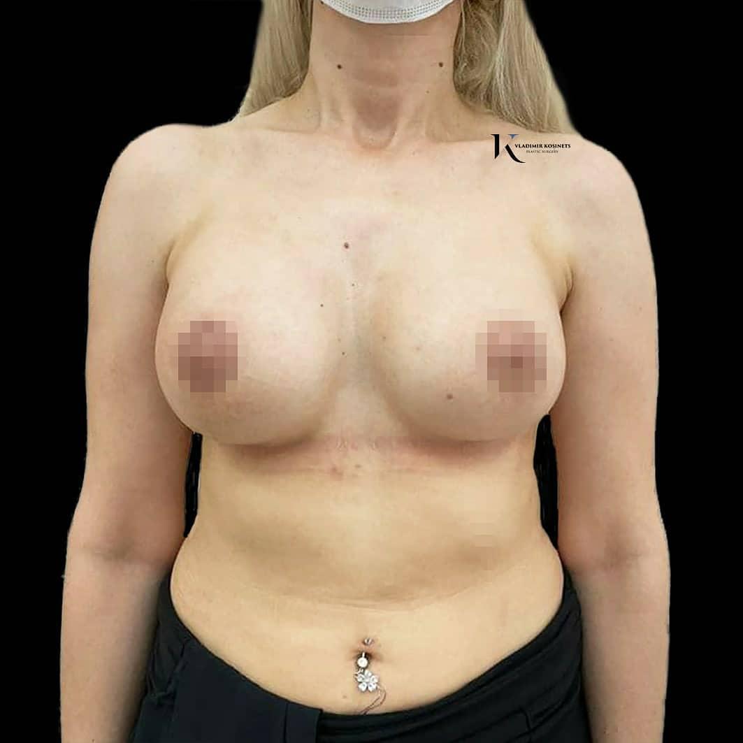 увеличение груди косинец