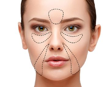 В каких случаях стоит сделать липофилинг лица?