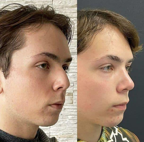 мужская пластика кончика носа