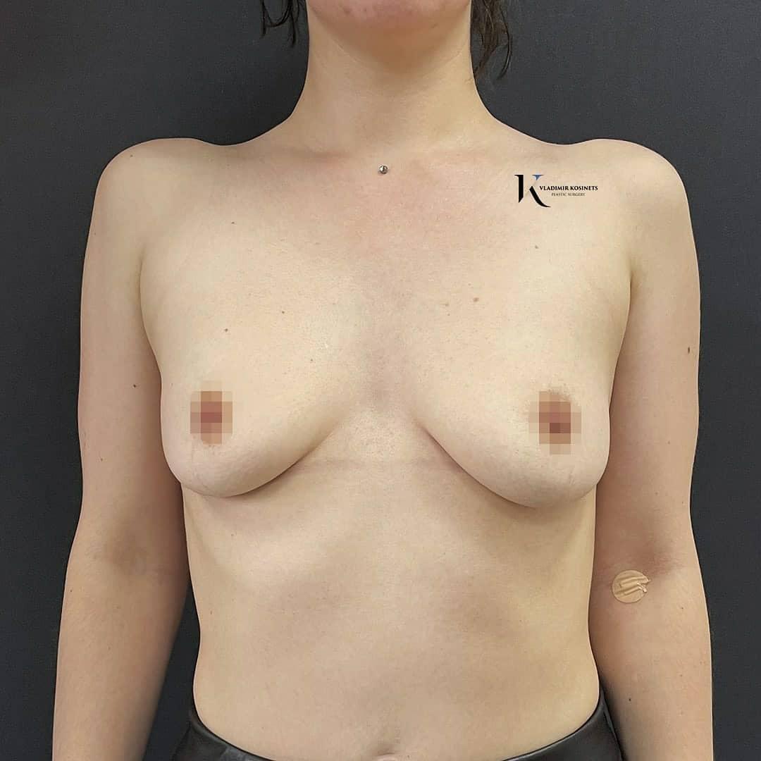 вертикальная подтяжка груди фото