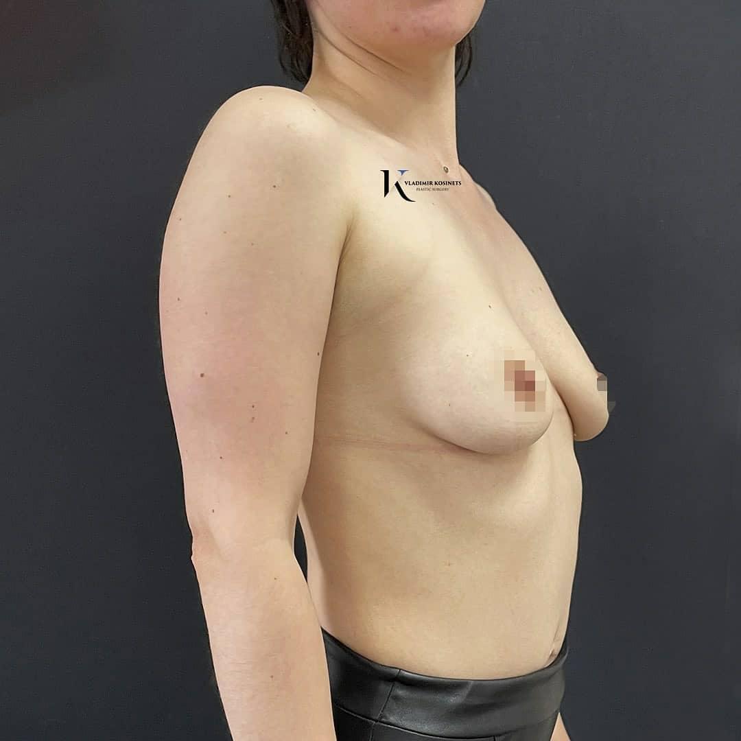подтяжка груди вертикальным рубцом