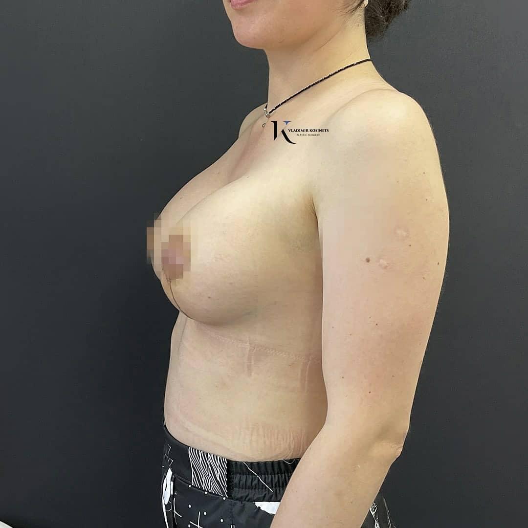 вертикальная пластика груди