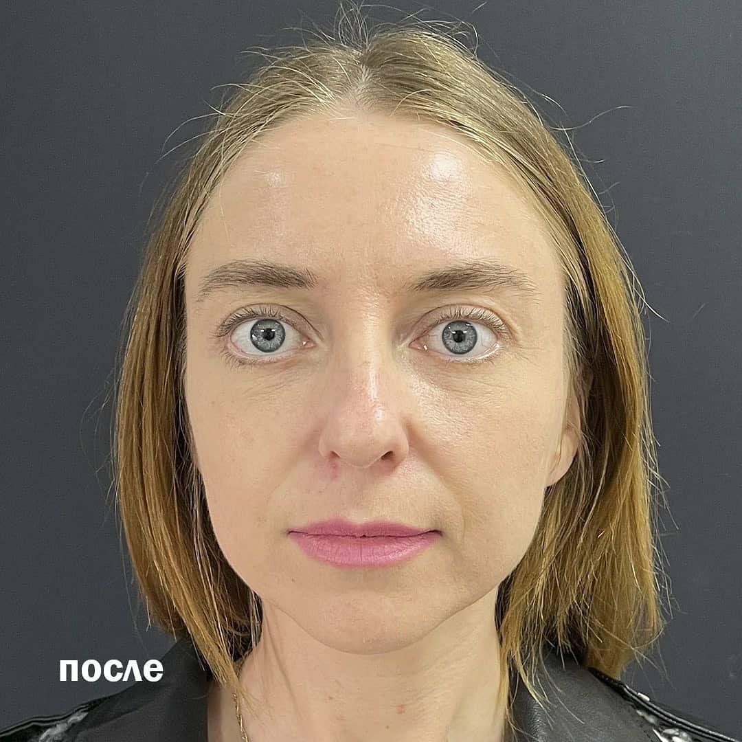 трансконъюнктивальная операция