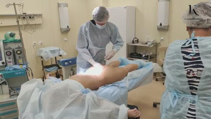 липомоделирование тела